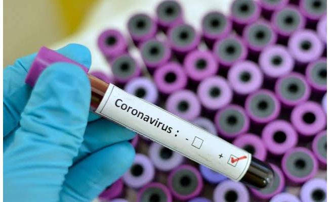 25 Eylül koronavirüs tablosu!