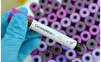 14 Temmuz koronavirüs tablosu!