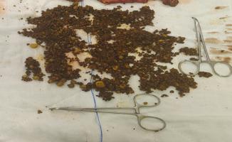 Urfa'da 70 yaşındaki hasta başarılı operasyon ile sağlığına kavuştu